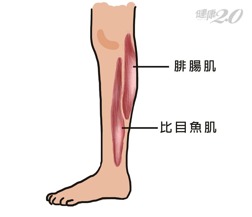 運動後小腿變粗「結成一丸」?揭小腿變粗3真相!專家教你有效瘦小腿肚