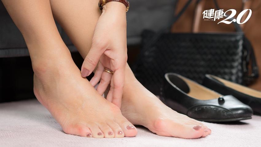 「大腳趾外翻」痛不欲生!醫師說只要這樣做,8成的人免開刀可改善