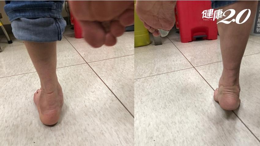 腳底痛可能不是足底筋膜炎!1招辨別後天性扁平足