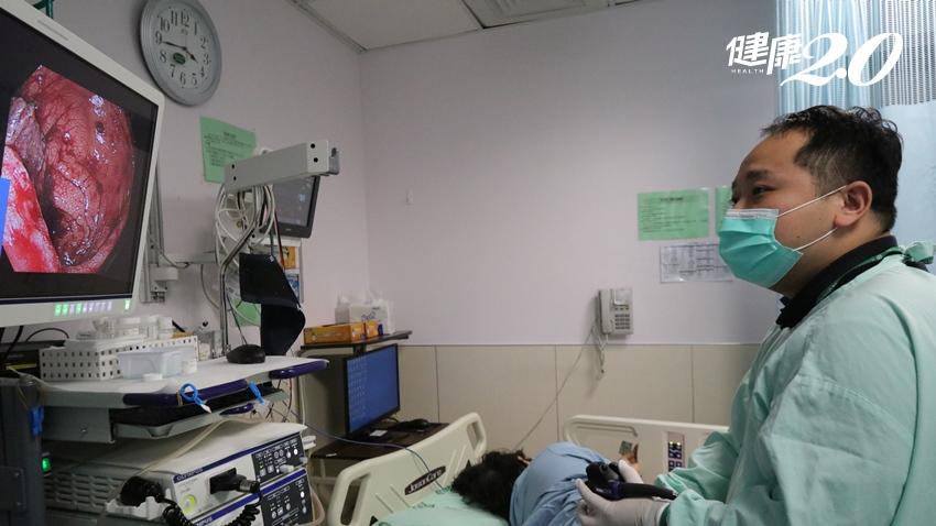 免麻醉也可無痛做大腸鏡!輕熟女嗜吃臭豆腐炸物腹悶排血便,醫師用「這招」揪出癌前病變