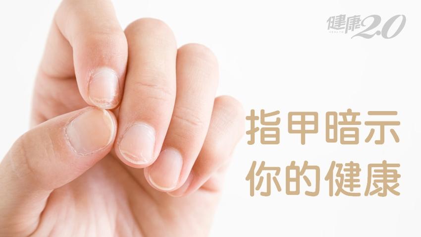指甲容易裂、出現橫紋代表什麼?14種指甲異常 暗示你身體出問題