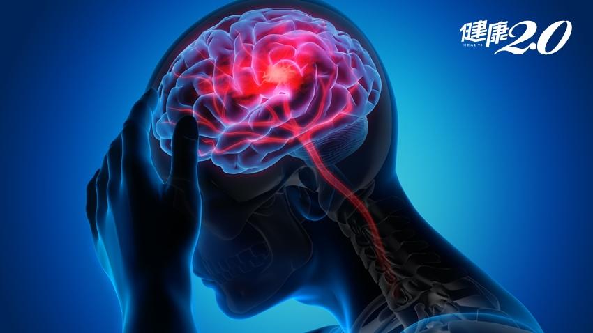 她爆炸性頭痛、嗜睡昏迷!「腦動瘤破裂」95%事前無症狀 30歲以上「這樣」做可保命