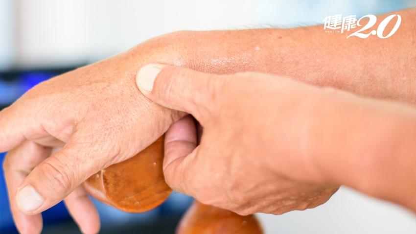 拇指痠痛捏不住!「基底關節炎」女性患者多,手術可助重「掌」人生