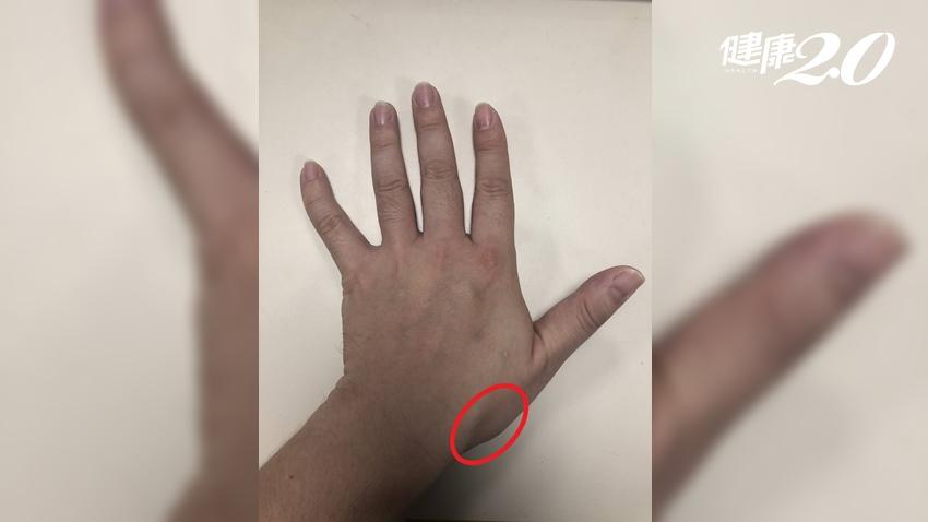 拇指痠捏不住 動刀重建腕韌帶