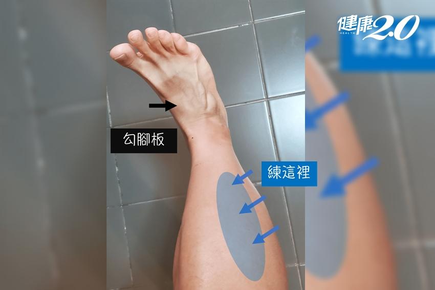 小腿痠痛緊繃 休息也沒用?跳繩搭配「關鍵1招」 有效改善肌肉不平衡