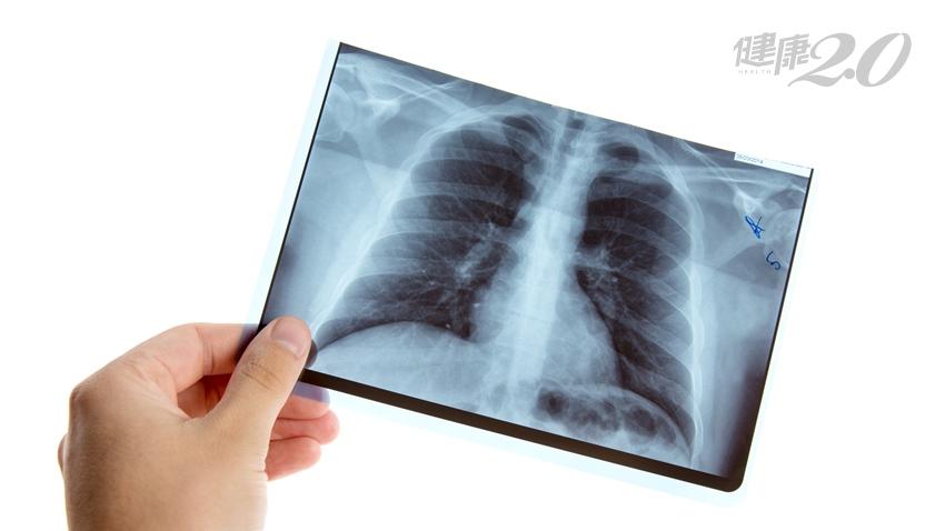 肋骨斷3 根,X光為何沒看出來?醫曝真相…加做「這」種檢查更精準