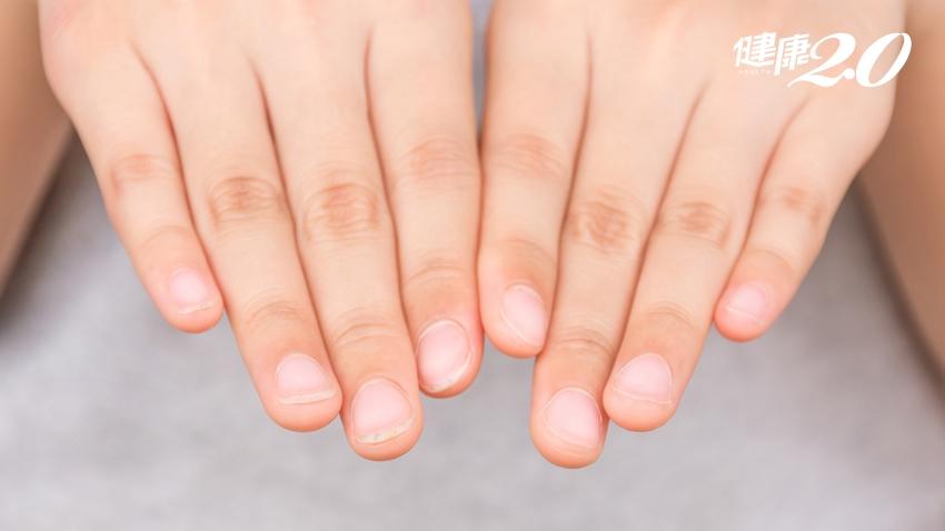 指甲太軟「補鈣」沒效!醫師曝營養關鍵、解密指甲2大重要部位
