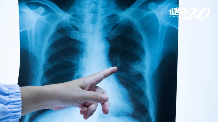 肺癌也會遺傳!揪出早期肺癌,哪種檢查最有效?台大權威揭露這1種