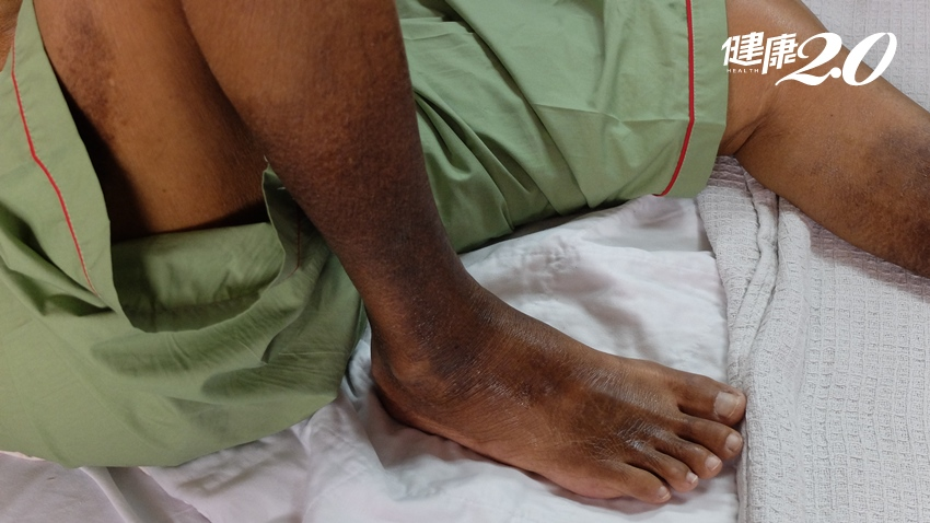 阿公「腿中風」變黑又冰冷!醫師「這」療法打通血管免截肢,6種人常發生