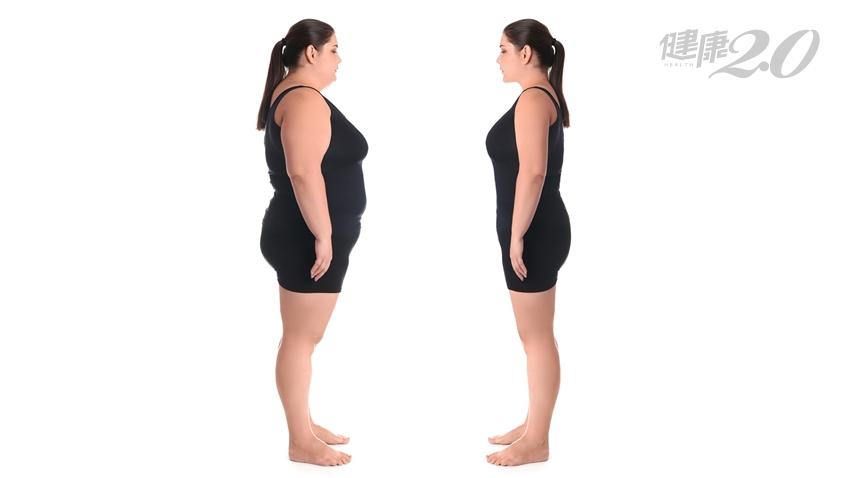 糖尿病可以治癒!她114公斤手術治療半年狂瘦55公斤 三高、糖尿病都改善