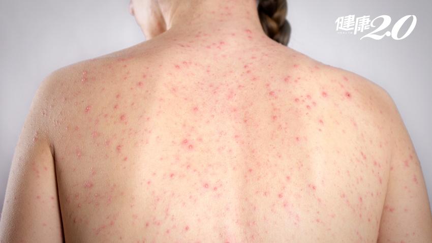成功嶺爆水痘群聚感染 成人水痘致死率翻倍! 17歲以上未打疫苗者小心
