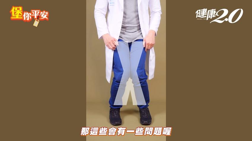別讓「X型腿」毀了你的膝蓋!復健科醫師教你「翹腳」就能改善