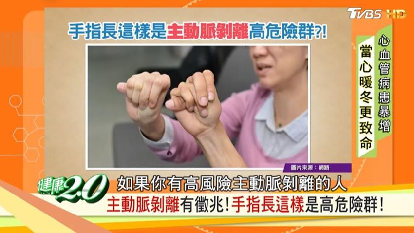 黃鴻升主動脈剝離猝逝!醫師警告:手指長這樣是高危險群