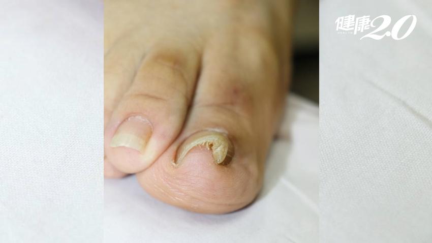 好痛!「腳趾甲」常長進肉裡怎麼辦?1招解決,不用拔趾甲