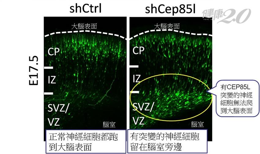 沒家族史為何生出「平腦症」的孩子?長庚跨團隊發現致病新基因CEP85L