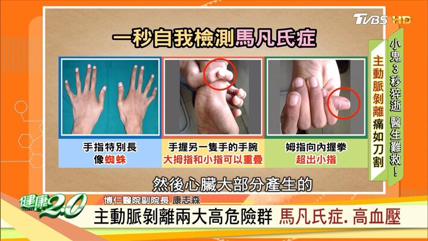 黃鴻升主動脈剝離猝逝!醫師揭2大主動脈剝離高危險群 手指長這樣要小心