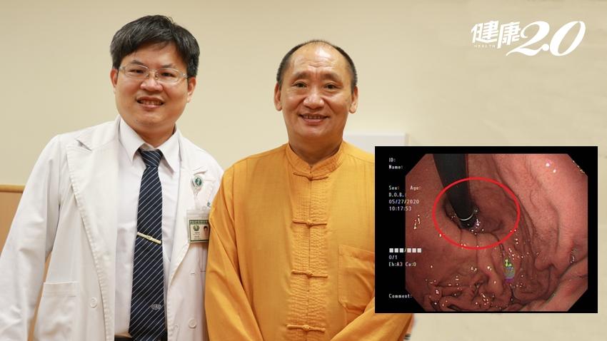 他胃食道逆流50年、吃藥吃不好 醫師揪出「真正病因」手術根治了!