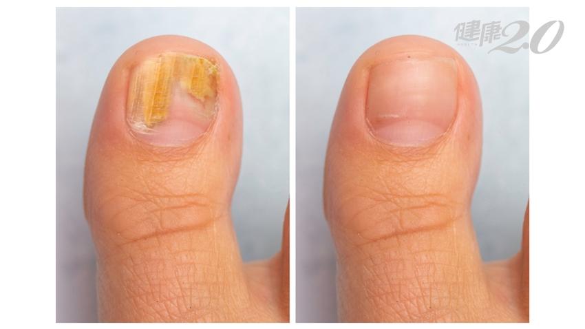 指甲變色就是灰指甲?9種人容易得到!想治癒灰指甲,醫師4招照著做