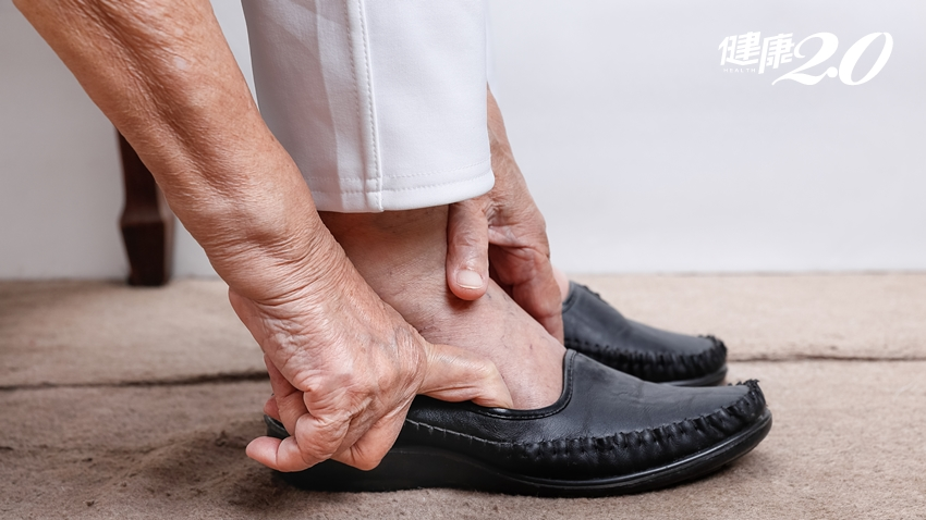 糖尿病「足病變」 嚴重恐截肢 70%因為穿錯鞋!醫師提醒「3不2要」