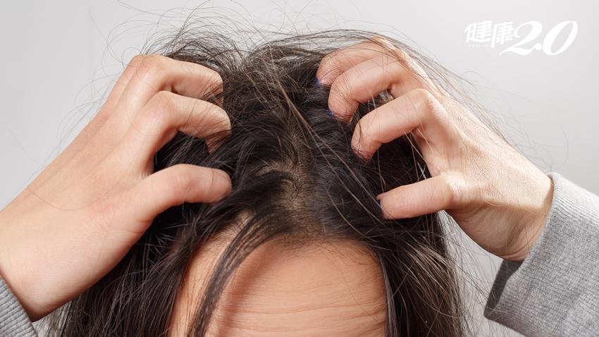 醫師警告「頭皮癢不要抓!」 4種頭皮皮膚病會傳染嗎?如何治療改善?