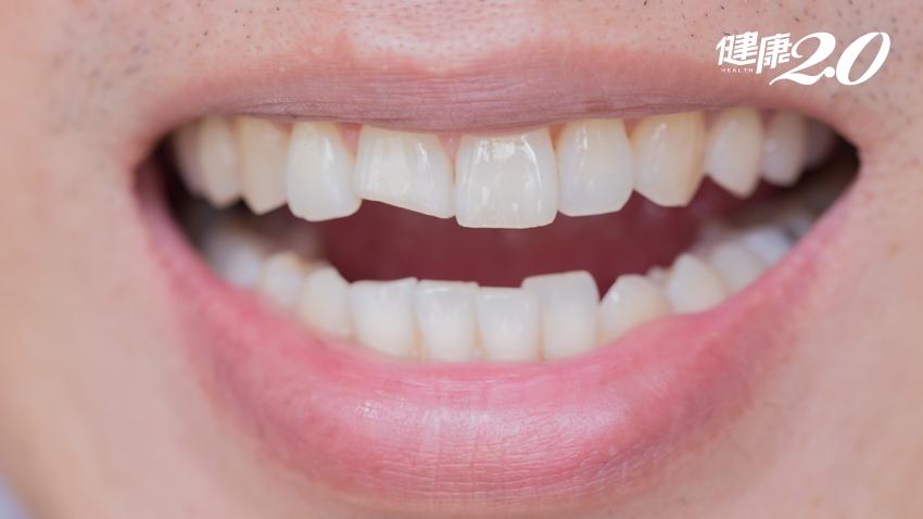 牙齒斷裂黏回去就可以?3招避免牙齒斷裂