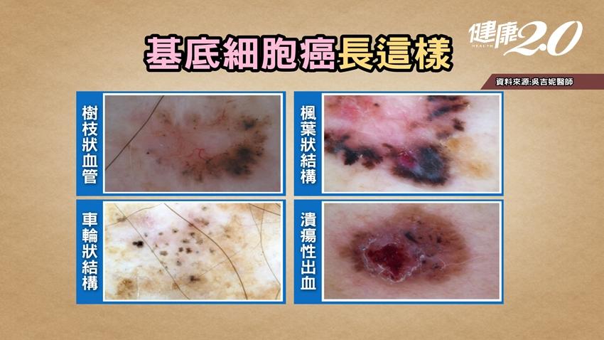 臉上斑點可以雷射嗎?5招自我檢測是「痣」還是「皮膚癌」