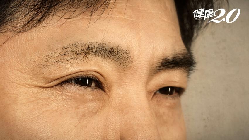 眼睛畏光不只是青光眼!「病毒感染」害他幾乎失明 治療後視力回來了