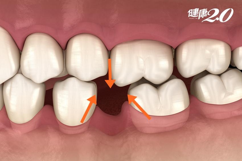 「缺牙」小心失智症找上門!台灣缺牙率高 暗藏5大健康危機