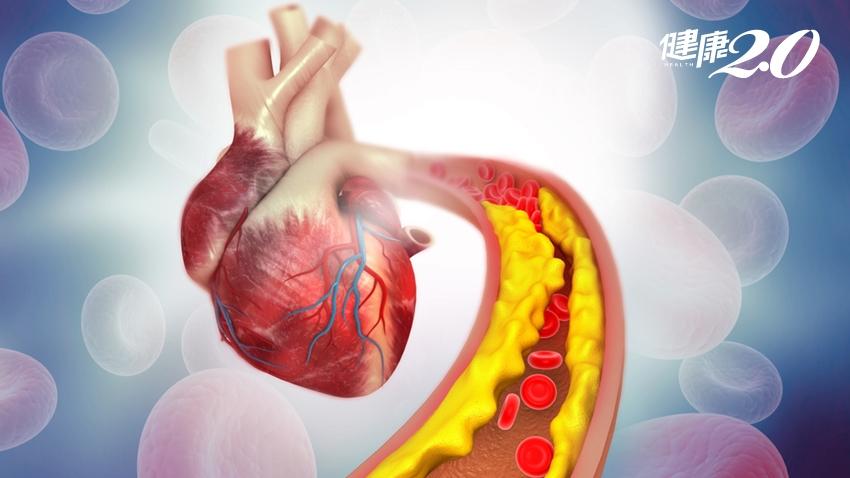 早上發作、下午就死掉…防「心肌梗塞」奪命,控制膽固醇別吃錯油
