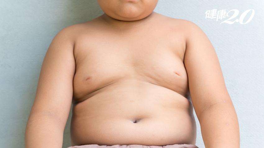 11歲胖童竟有脂肪肝!研究:兒童時期肥胖 早死風險高1倍