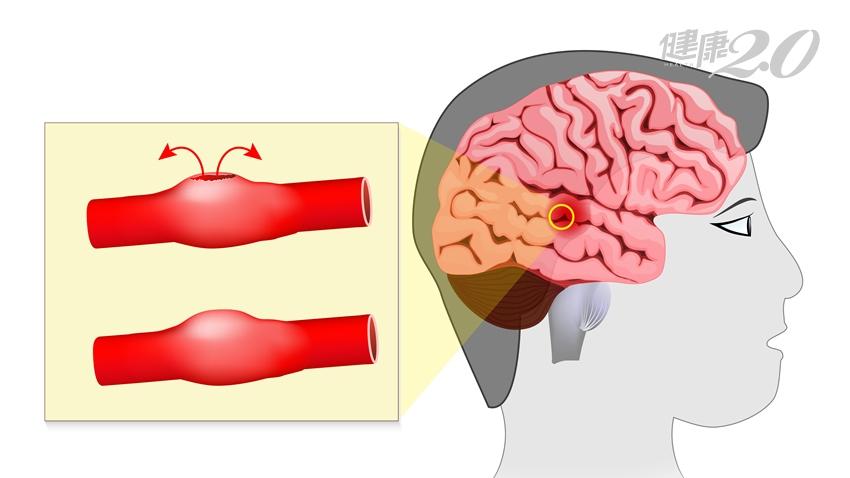 早上好好晚上中風! 醫師:恐是腦動脈瘤惹禍,控制好「它」免煩惱