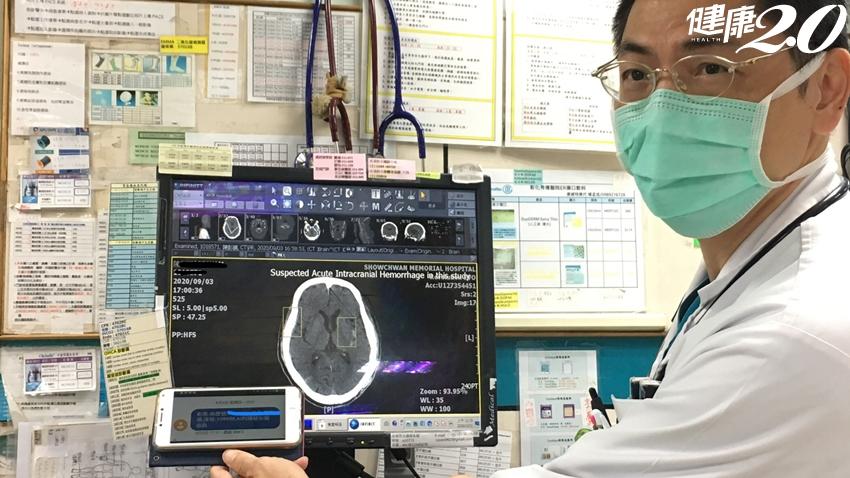 急診室分秒必爭!AI智慧快速檢出腦出血,爭取病人搶救時間