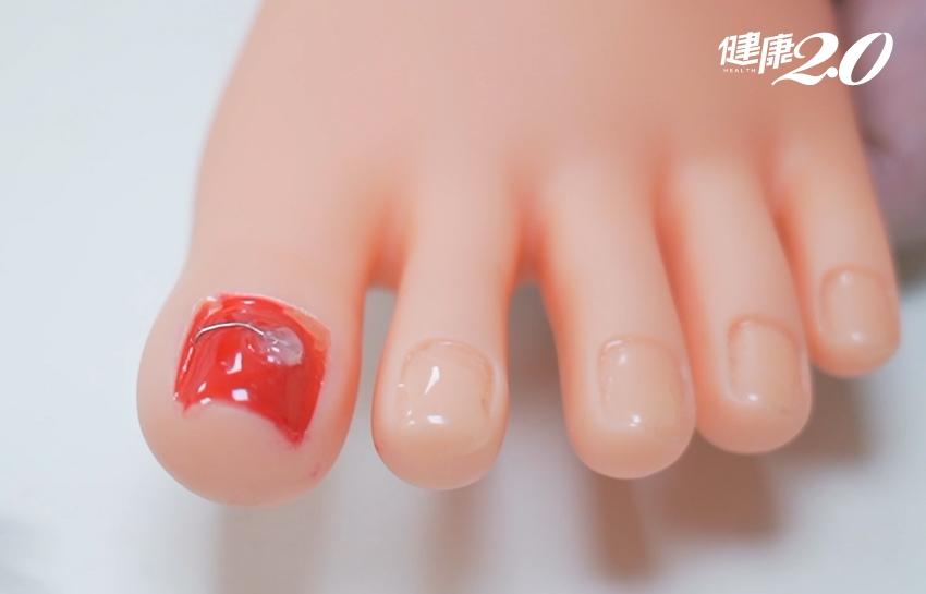 走路腳趾會痛?小心「凍甲」找上門 矯正治療免開刀、復發率僅1成