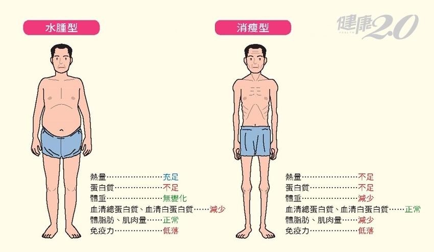 身體缺哪種營養素?缺乏蛋白質會「變瘦」還是「變胖」?3種人小心了
