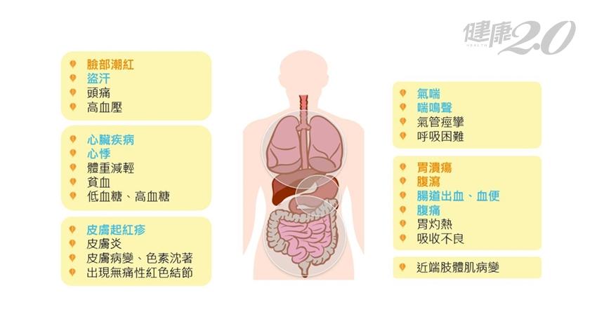 長期腹瀉、反覆胃潰瘍、咳嗽...「賈伯斯病」症狀難分辨!醫曝神經內分泌腫瘤10大危險警訊