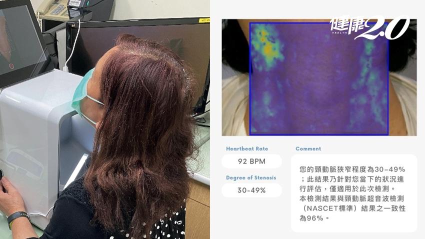 台大研發全球首創「腦中風快篩」 拍30秒影片就能評估腦中風!