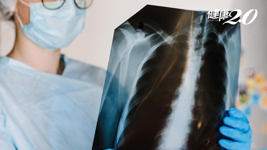 骨頭痛痛的?小心是癌症骨轉移!哪些癌症是高風險群?骨轉移還有救嗎?