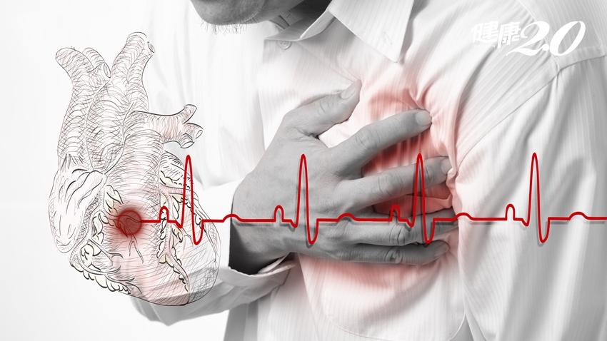 心肌梗塞可能沒徵兆、不一定會胸痛!醫師5個生活好習慣 遠離心血管疾病