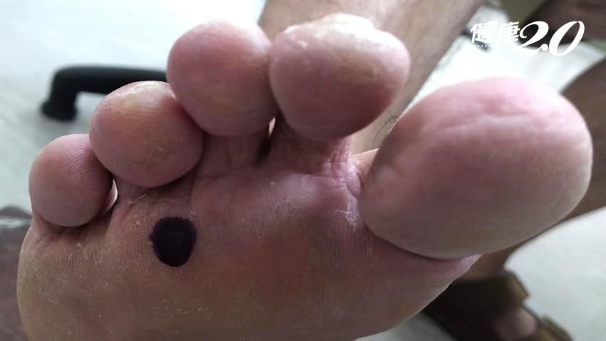 這不是雞眼!腳底痛像踩到石頭 醫教4招避免「莫頓神經瘤」