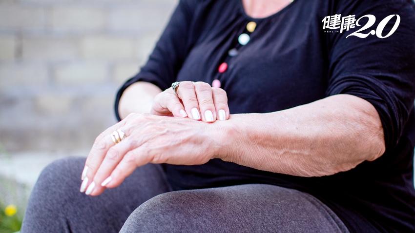 手也會中風!7旬老婦手臂發白、發紫險截肢 醫曝4種人要當心