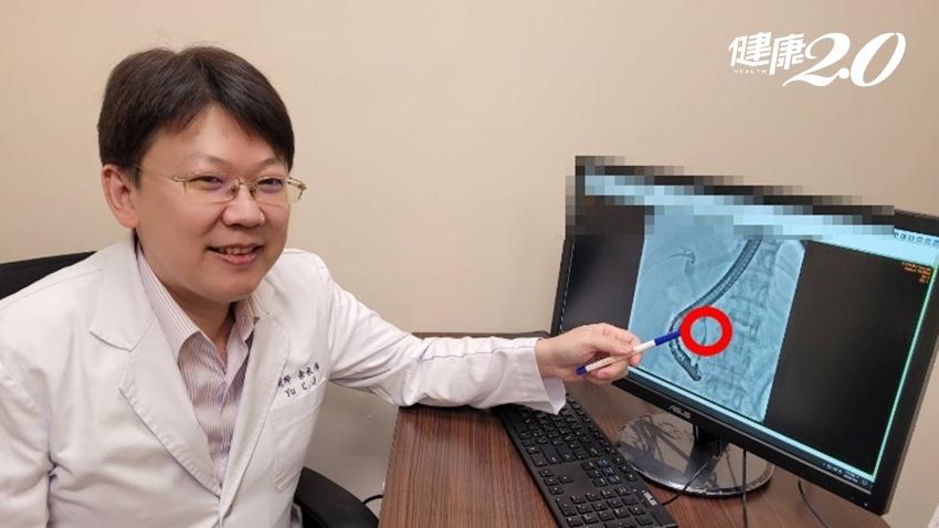 右上側腹痛竟是膽管癌!膽管癌不易早發現,若還體重驟減、食慾不振要當心