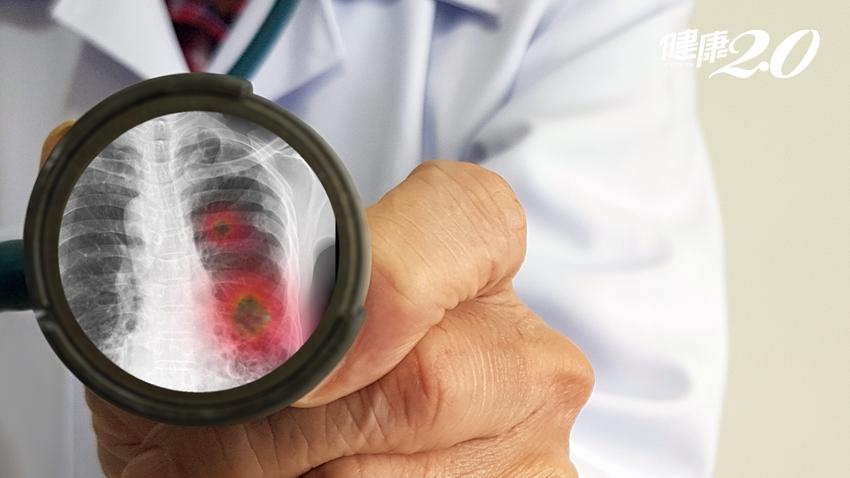 5種人小心肺炎致命!醫師呼籲必做這些事 越早開始離肺炎越遠