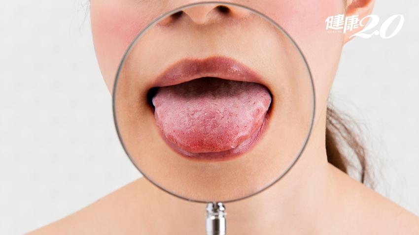 味覺失靈可能缺鋅了!每天要攝取多少鋅?含鋅食物有哪些?