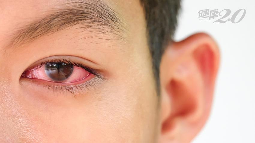 眼球 症 無
