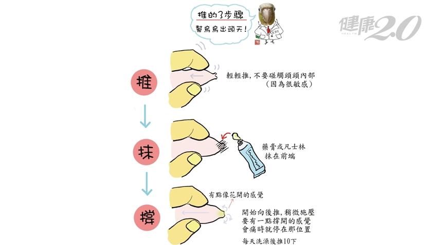 孩子幾歲才需要推開包皮?醫師教你3步驟正確清潔 避免長包皮垢