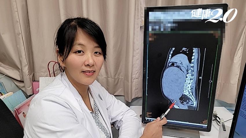 子宮肌瘤會遺傳!她怕開刀竟懷7.9公斤巨瘤 4狀況不能拖