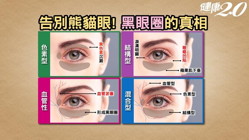 黑眼圈不一定是睡不好!真相在這!該怎麼消除?學會泡「1杯茶」讓眼睛發亮