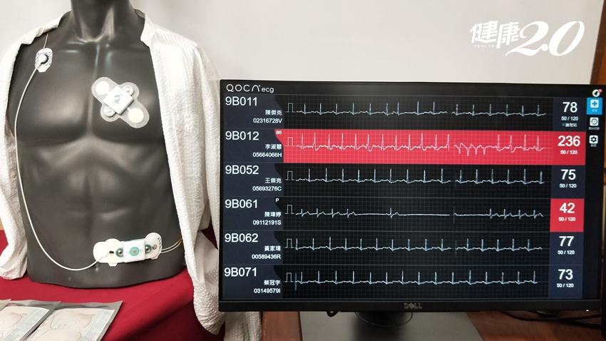 一年2300人心律不整猝死!北榮開發AI判讀心電圖 14天監測揪出漏網之魚