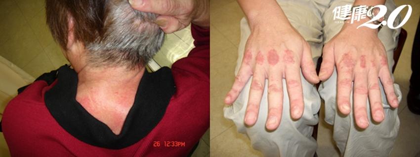 皮膚會反映你的健康!出現紅疹、四肢無力要當心了!這不是一般皮膚問題