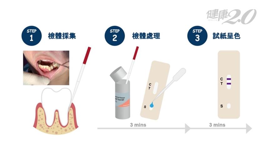 診斷牙周病不痠麻痛!全球首創6分鐘無痛牙周病快篩